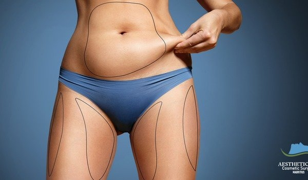 Liposuction: everything you need to know before a cosmetic surgery!